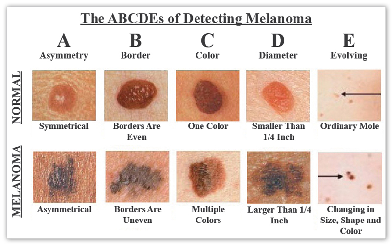 Is it cancer know your skin cancer abcs it might save your life